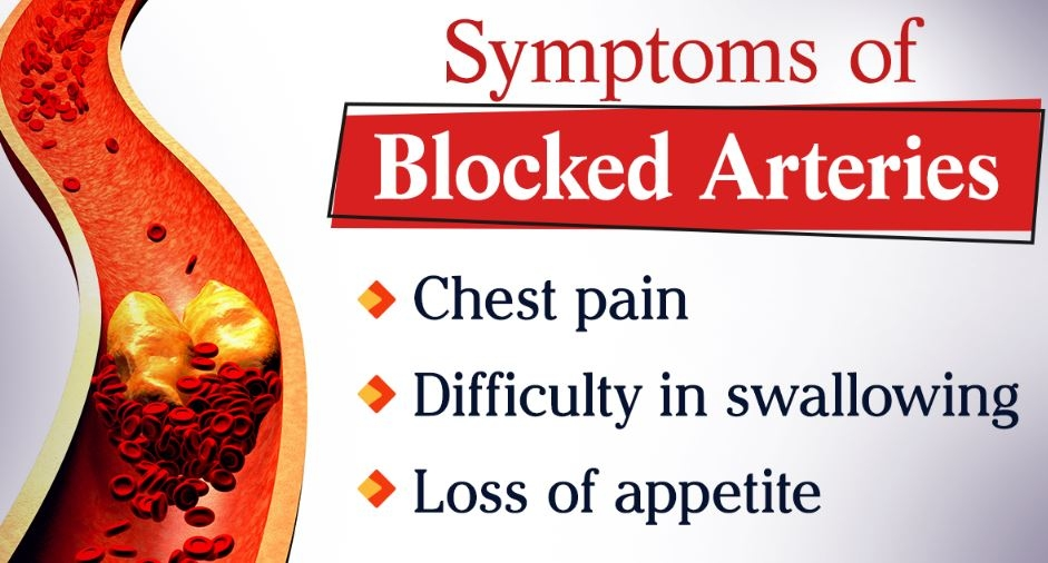 blocked arteries symptoms