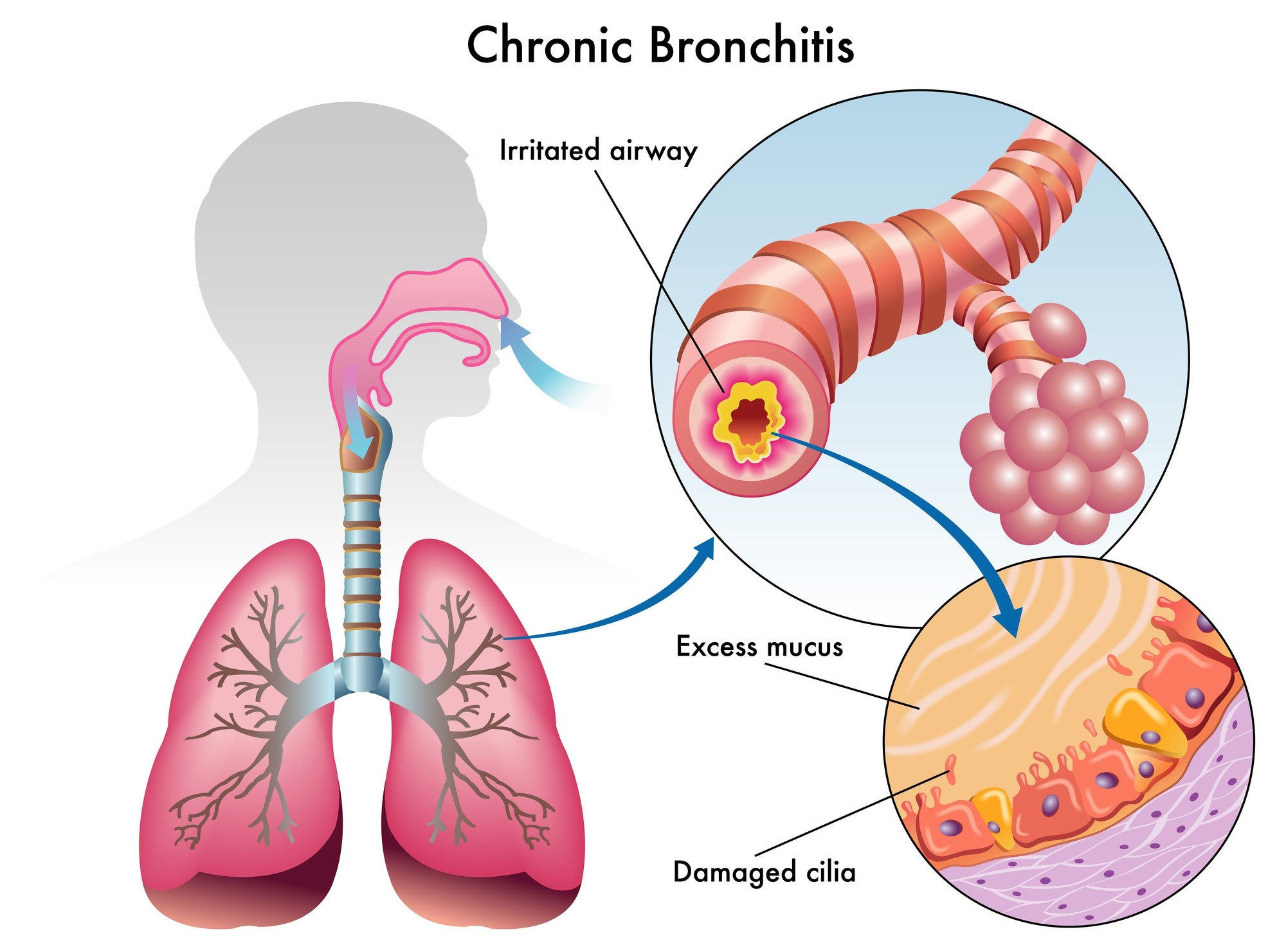 chronic bronchitis diagram